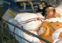 Un hombre es atendido en un hospital /Youtube